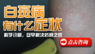 白癜风病初期症状